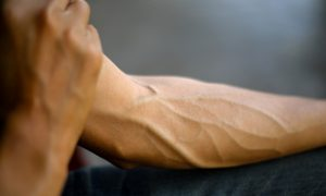 forearm veins stock image