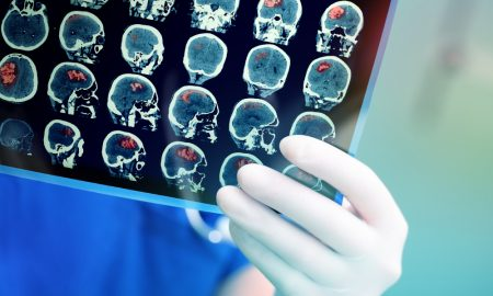 stroke research stock image