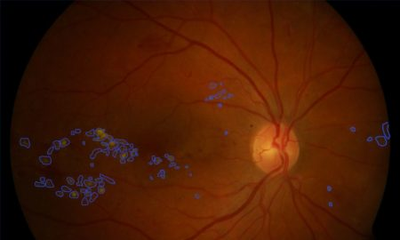fundus image of a retina