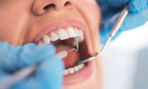 Dentist mouth stock image
